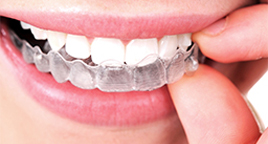 Orthodontics / Braces