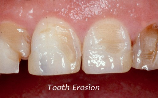 Dental Erison