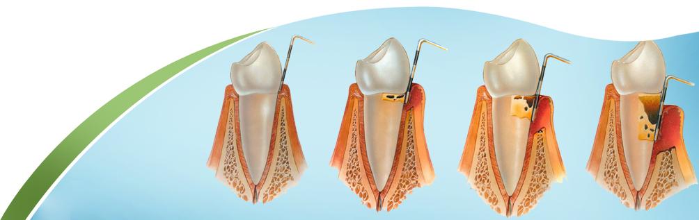 Gum Disease! What Causes Gum Disease?